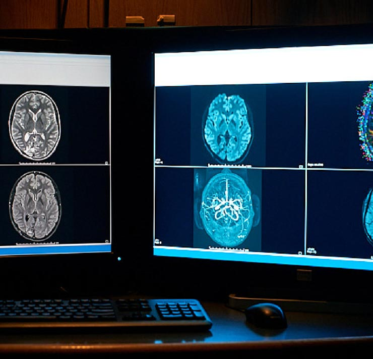 ChRIS project brain scans on computer monitors
