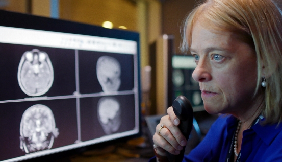 Woman analyzing MRI imaging results of a brain
